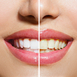 Cosmetic  Whitening T Spa teeth whitening special image